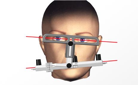 misurazione delle informazioni estetiche-occlusali-armoniche del viso del paziente